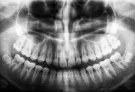 oclusion dental y quiropráctica